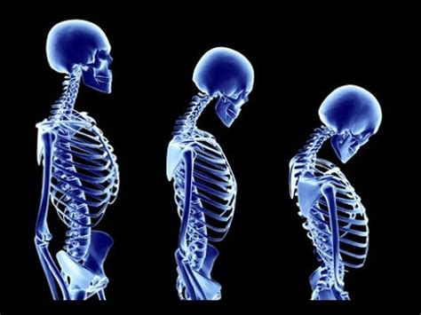 X ray report writing for chiropractors